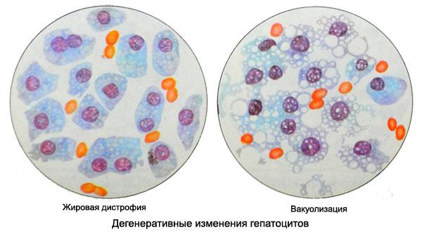 Дегенеративные изменения гепатоцитов