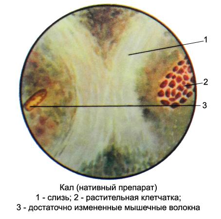 Препарат кала под микроскопом