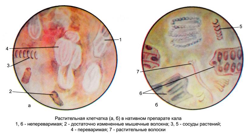 Растительная клетчатка в кале