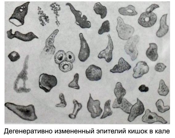 http://medicalhandbook.ru/images/diagnostics/93-kal.jpg
