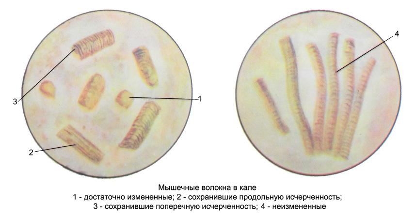 http://medicalhandbook.ru/images/diagnostics/96-kal.jpg