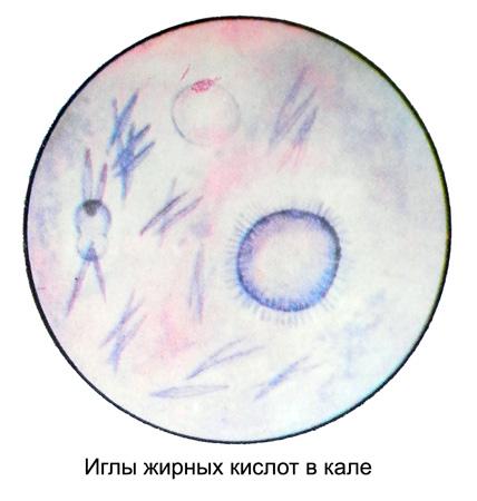 http://medicalhandbook.ru/images/diagnostics/98-kal.jpg