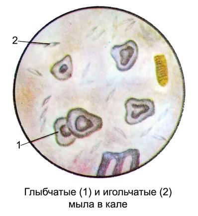 http://medicalhandbook.ru/images/diagnostics/99-kal.jpg