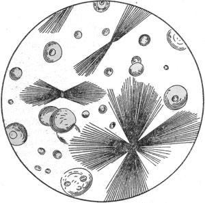 Кристаллы лейцина и тирозина в осадке мочи