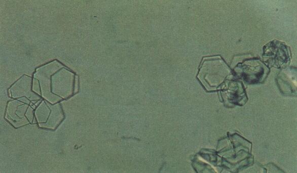 Кристаллы цистина в моче