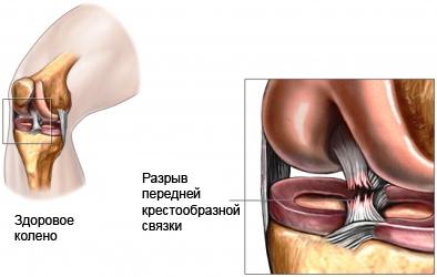 Операция на колене связки