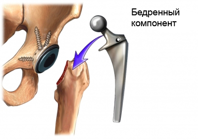 Установка протеза тазобедренного сустава